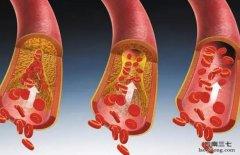 为什么三七活血散淤效果比西药好?