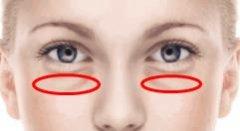 三七粉能去黑眼圈吗,去黑眼圈的方法?